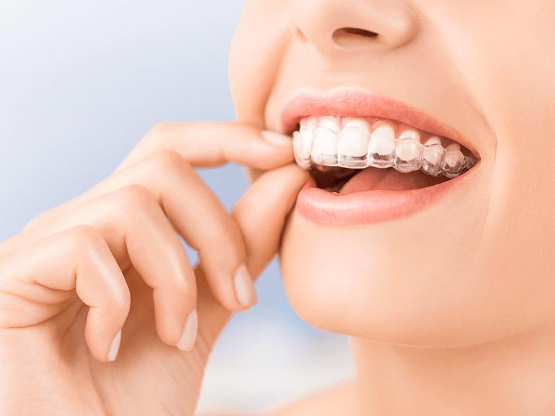 aligneur-dentaire