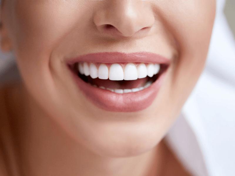 blanchiement-dentaire-1