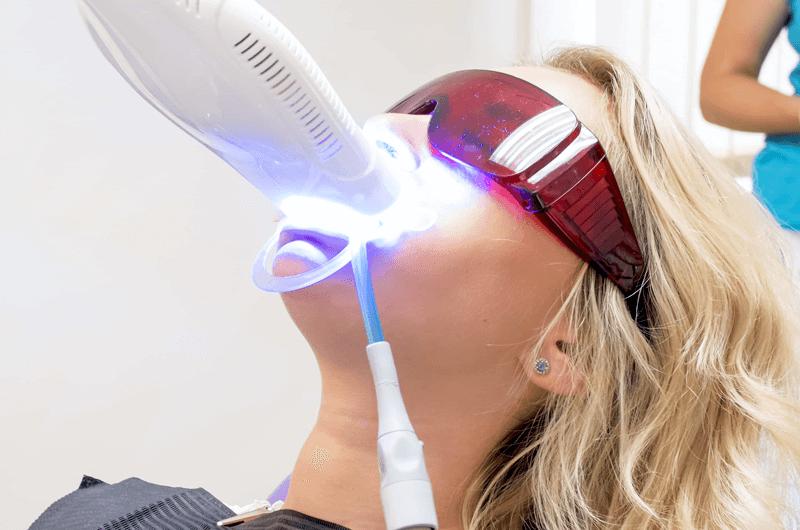 blanchiement-dentaire-2